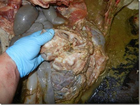 Intestinal mass